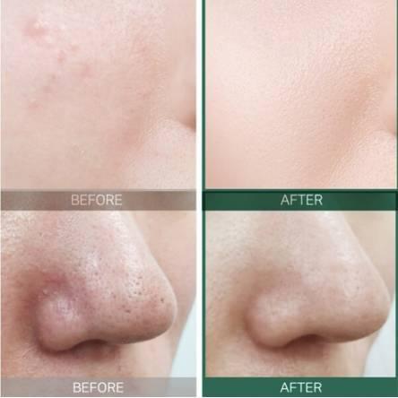 Кислотная сыворотка для проблемной кожи Some By Mi AHA BHA PHA 30 Days Miracle Serum - 50 мл